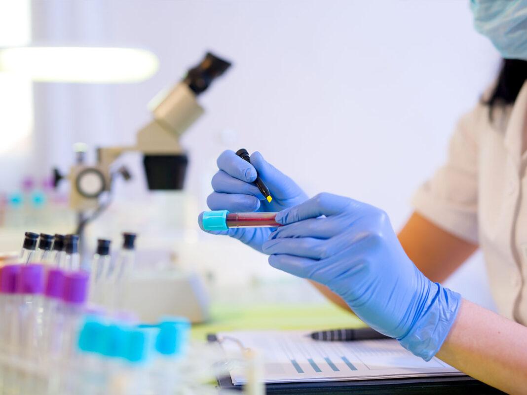 Un laboratorio di analisi